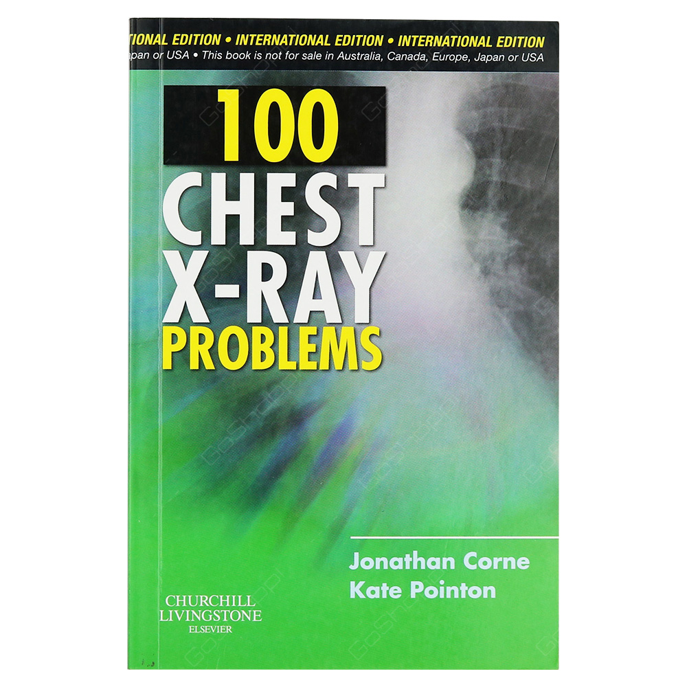 100 Chest X-Ray Problems International Edition
