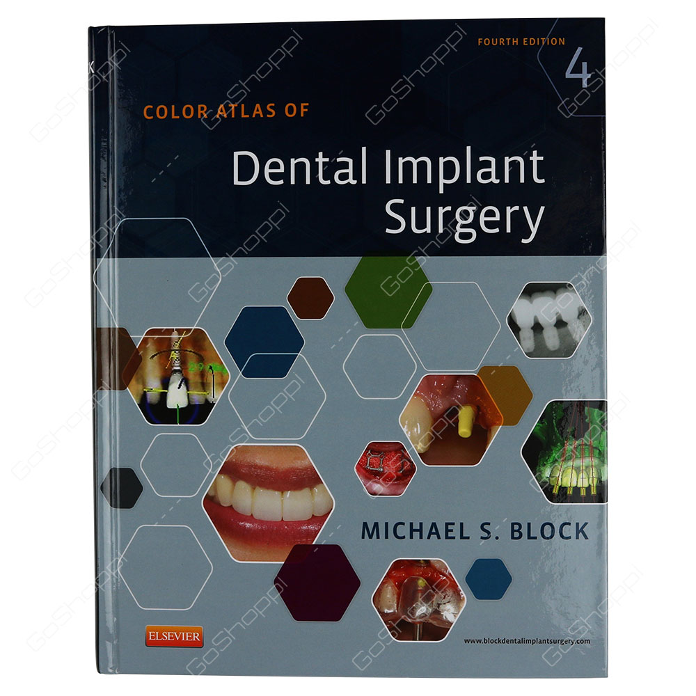 Color Atlas Of Dental Implant Surgery By Michael S. Block